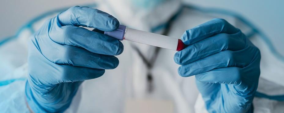 Cirugía Qué pasó con la donación de plasma, sangre y órganos durante 2020